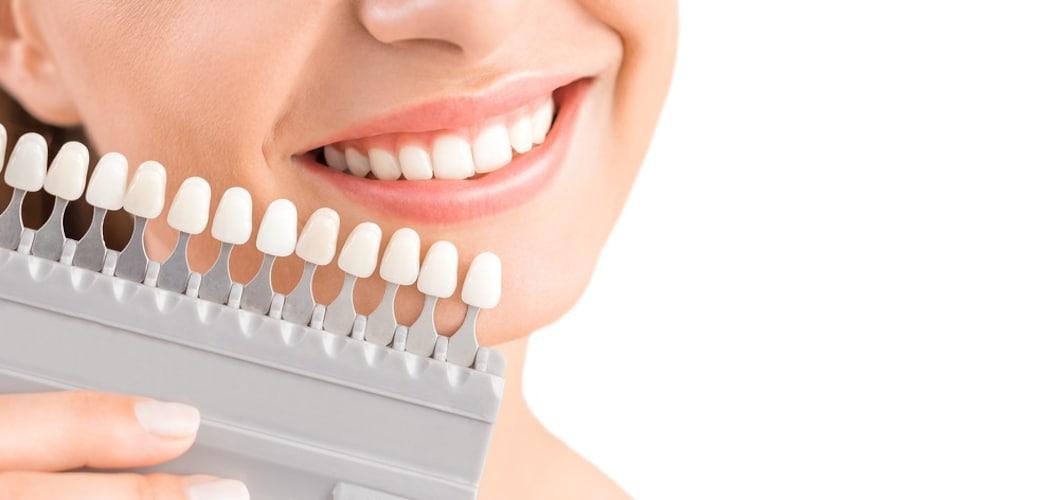 歯が黄ばむ原因は?市販のホワイトニングとは?