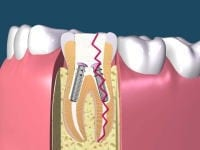 歯の根が折れたら抜くしか治療できない