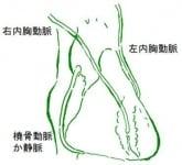 バイパス手術は冠動脈の病変を治すのではなく冠動脈全体を治すため、長期の安定性に優れます