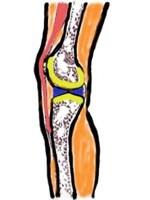 赤の筋肉・腱の硬さにより黄の関節軟骨が悪影響を受けることがあります