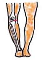 O脚では赤い部分に負荷がかかりやすくなります
