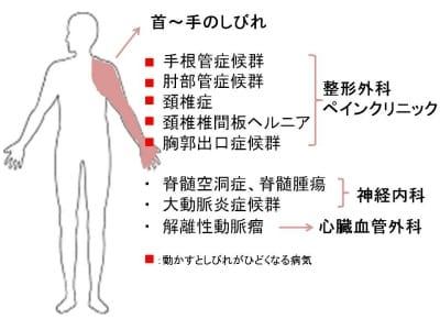 手のしびれ、腕のしびれ、手がしびれる、病気、原因
