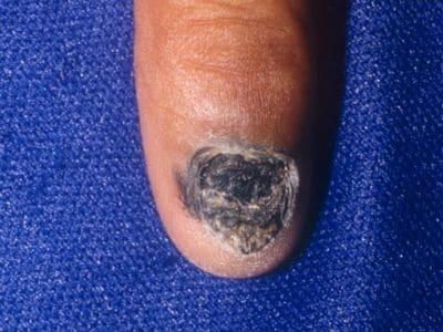 末端黒子型黒色腫