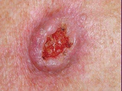 有棘細胞ガン