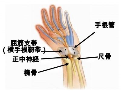 手根管症候群を医師が解説—症状・原因・治療法
