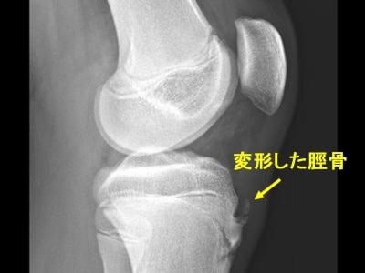 成長痛の診断・原因 [骨・筋肉・関節の病気] All About