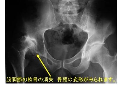 変形性股関節炎。