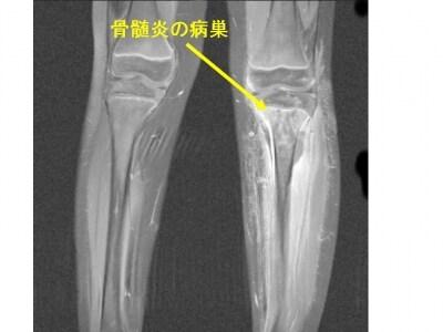 急性骨髄炎の症状・診断・治療 [...