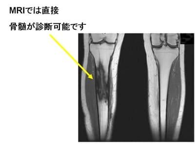 慢性骨髄炎の症状・診断・治療 [...