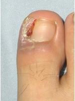 指先の炎症が起きた巻き爪undefined爪の横に肉芽腫が認められます