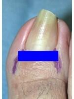 爪母全切除法undefined青い部分の爪母をすべて切除します