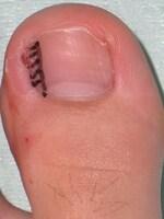 爪部分切除undefined黒の斜線部の爪を切除