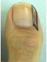 鬼塚法undefined爪の横を大きく切開