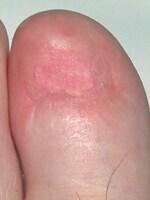 術後1年undefined爪は永遠に消失し巻き爪は完治しました